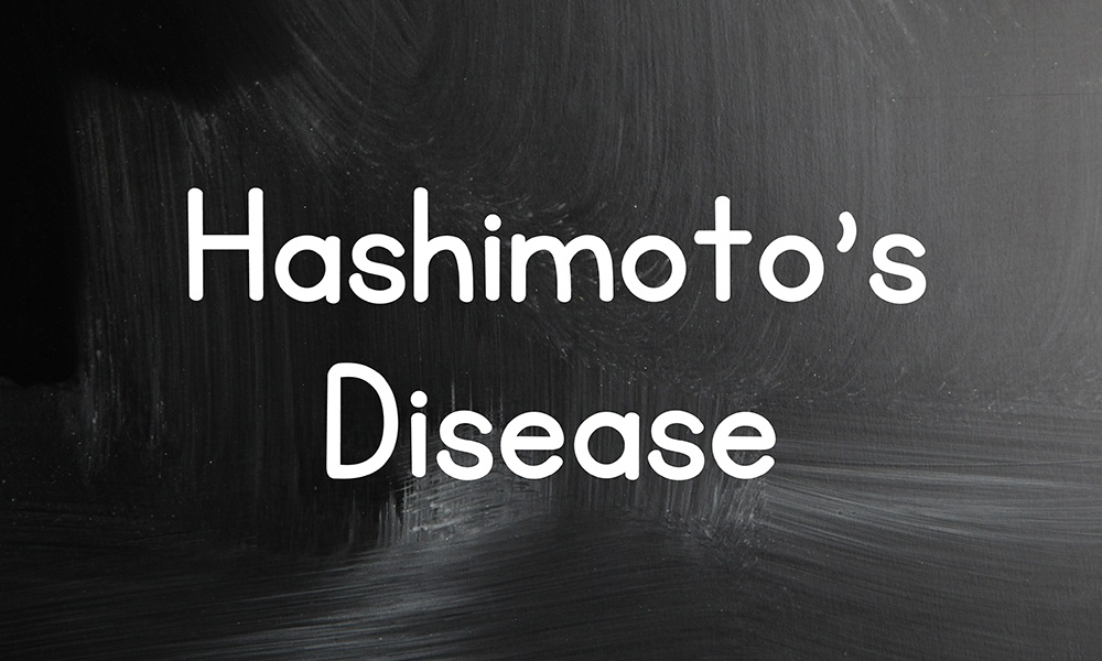 Hashimotos Disease Hypothyroid